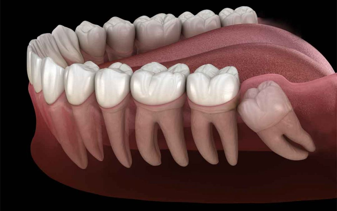 tooth removal in Fairview Heights